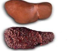 Лучшие препараты для профилактики заболеваний печени