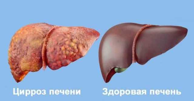Как быстро восстановить печень после воздействия алкоголя с помощью таблеток