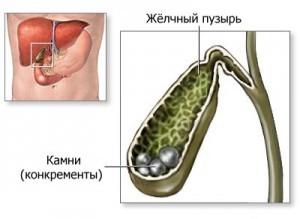 Как происходит хирургическое лечение желчнокаменной болезни