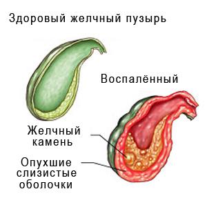 Признаки и лечение заболеваний печени и желчного пузыря