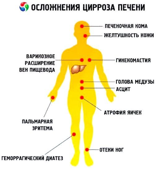 Причины, симптомы и лечение цирроза печени