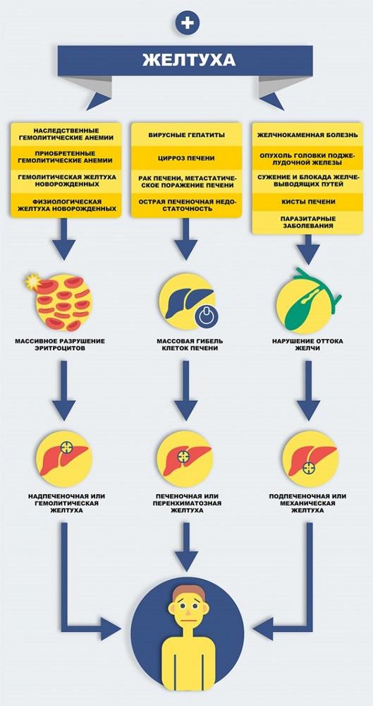 Что нужно знать о механической желтухе