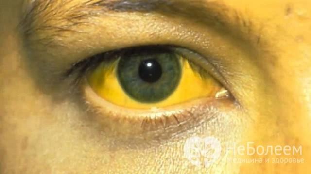 Как вылечить желтушный синдром у взрослого человека