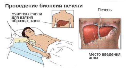 Гемохроматоз: причины, симптомы и лечение