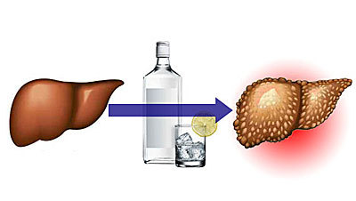 Что нужно знать об алкогольном циррозе печени